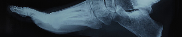 XRay of human foot side view